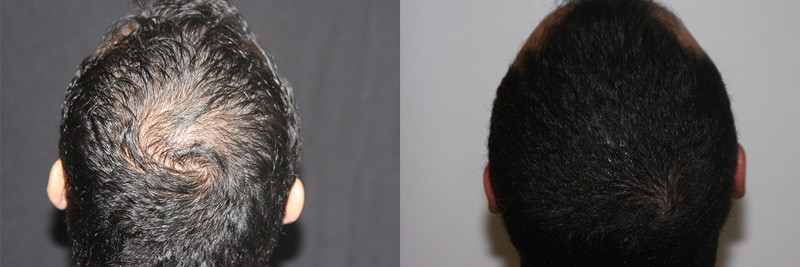 mens-hair-restoration-15