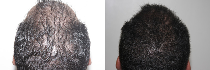 mens-hair-restoration-18