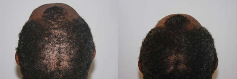 mens-hair-restoration-2