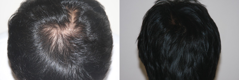 mens hair restoration - Arizona Aesthetics