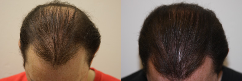 mens-hair-restoration-22