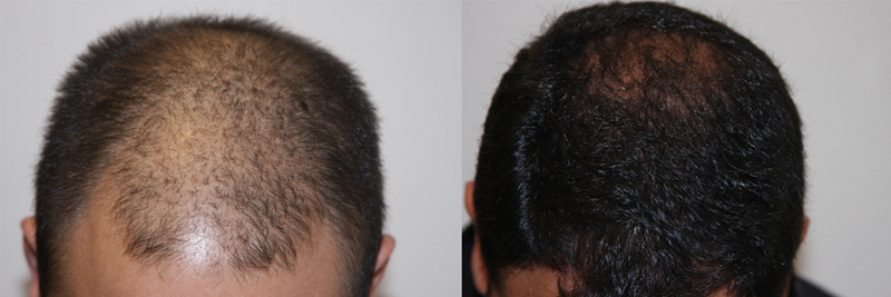 mens-hair-restoration-4