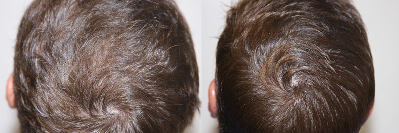 mens-hair-restoration-6