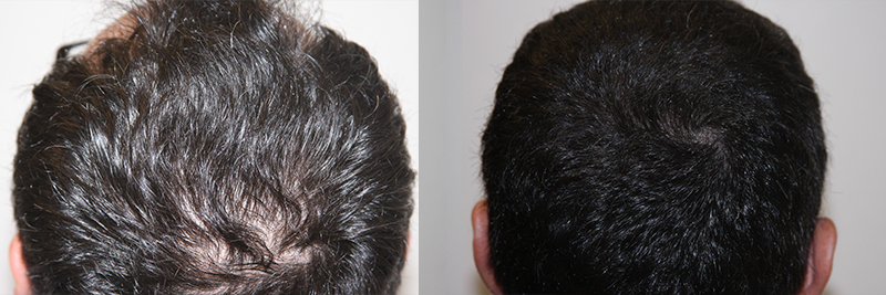 mens-hair-restoration-7