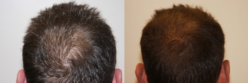 mens-hair-restoration-8