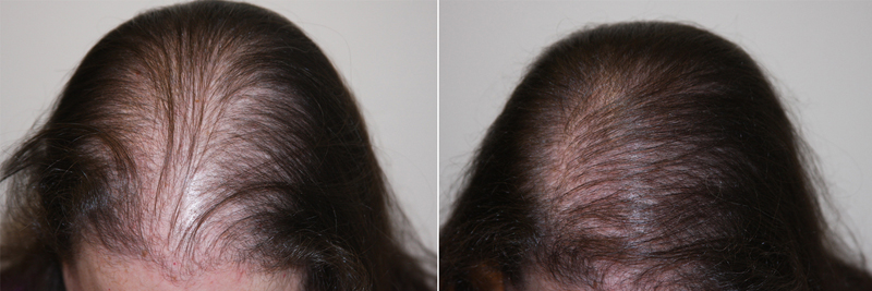 womens-hair-restoration-2