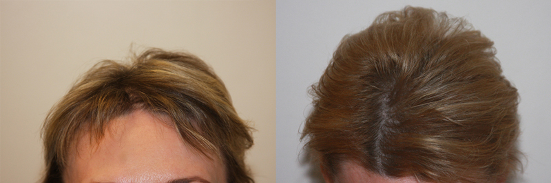 womens-hair-restoration-8