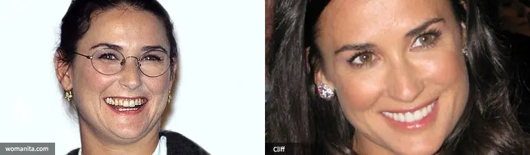 Demi Moore dental transformation