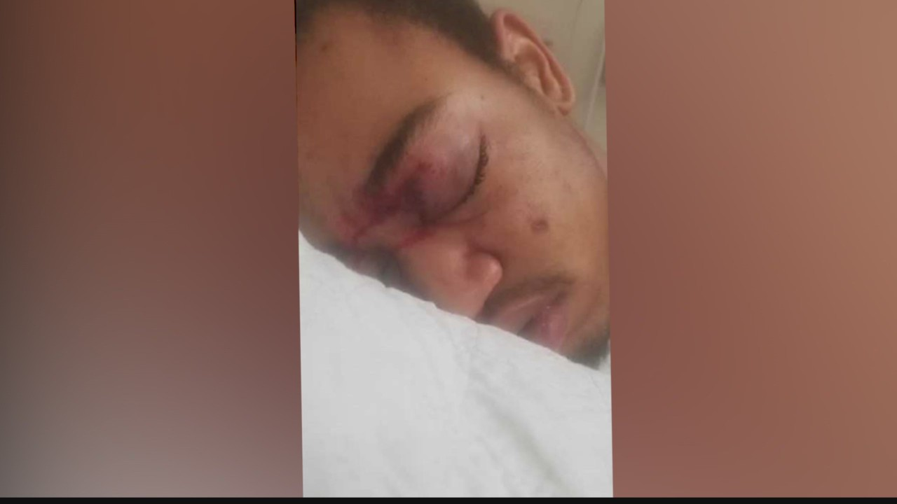 Civil rights lawsuit claims police blinded 17-year-old_1549326592872.jpg.jpg