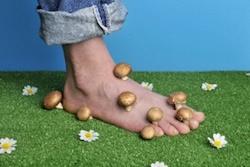 soigner une mycose des pieds naturellement r sultats garantis. Black Bedroom Furniture Sets. Home Design Ideas