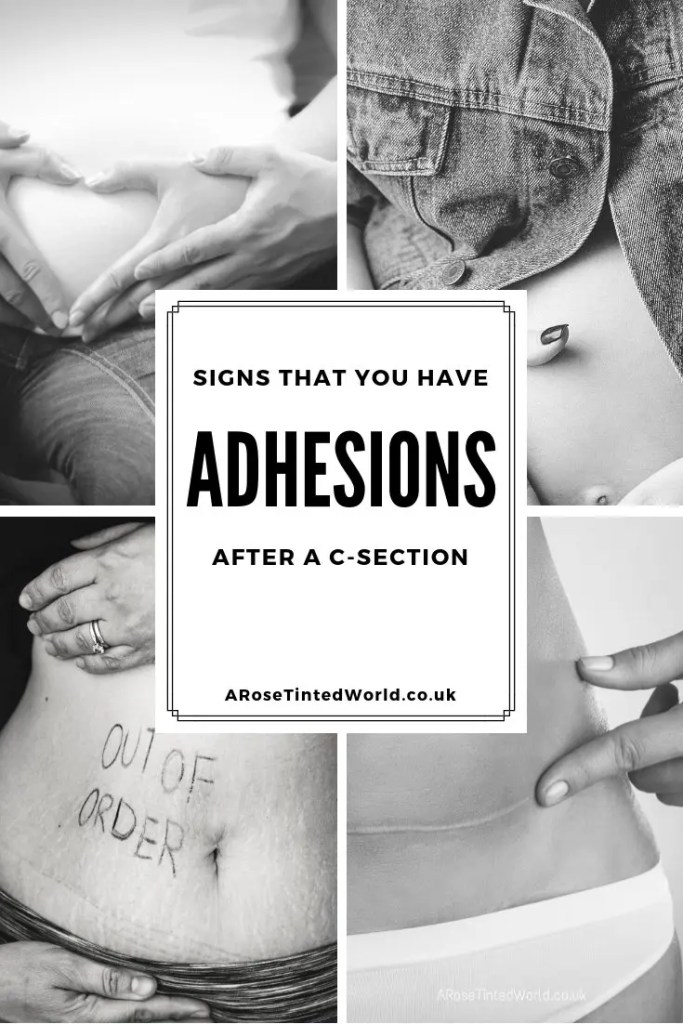 Adhesions after a C Section - problems after a caesarean section are a more common post birth postpartum  complication. Read on to find out what my symptoms were and what I have discovered about this condition. Also find out what the causes and possible solutions could be. #postpartum #birthproblems #childbirth #motherhood #caesarean #csectionrecovery #csectiontips #csectionrecoverytimeline #csectionbelly #postpartumcare #adhesions #IBScauses