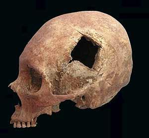 Los incas fueron mejores en cirugías de cráneo que los médicos de la Guerra Civil Americana
