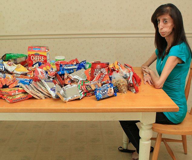 Garota Consome Mais de 5 mil Calorias Por Dia e Não Passa Dos 29kg