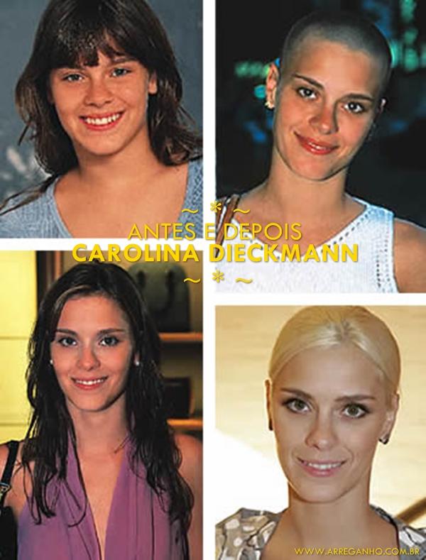 Antes e depois – Carolina Dieckmann