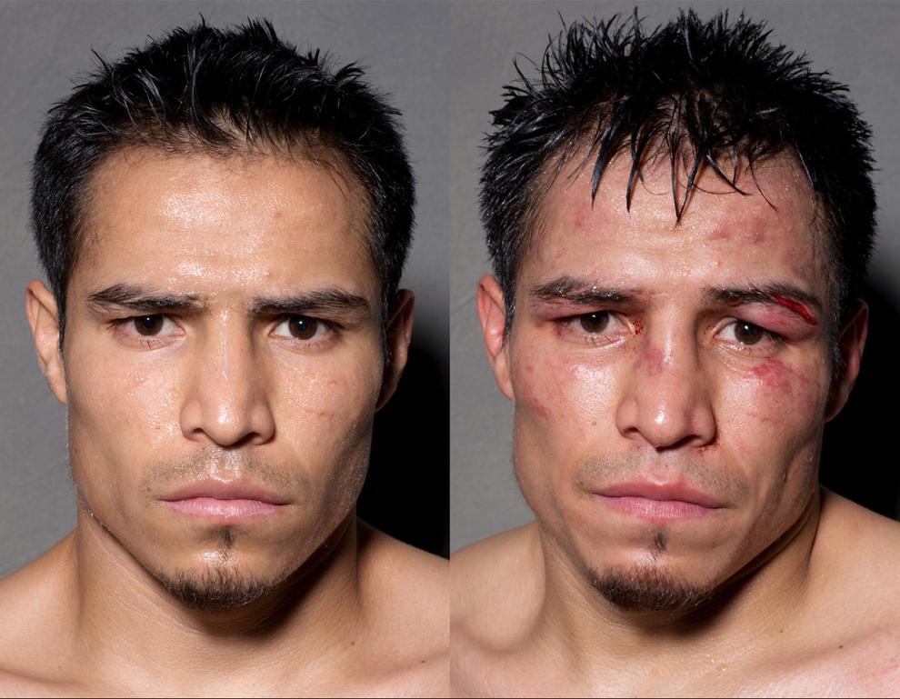 Fotos de lutadores antes e depois das lutas que vão te surpreender