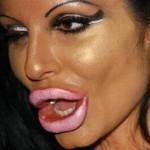 10 pessoas que não souberam usar Botox da maneira certa