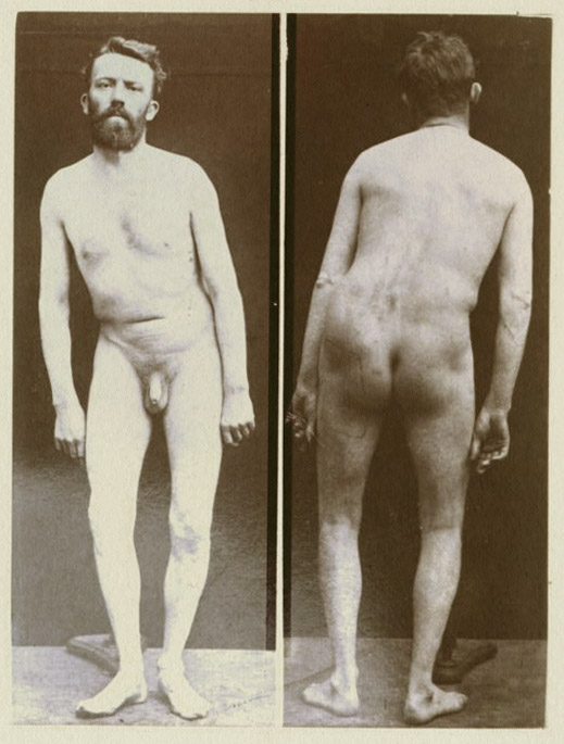 Art and Medicine Bibliography Joseph Franois Flix Babinski