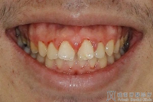 藉由改變牙齒的位置 達到理想的咬合及美觀 – 雅術牙醫診所