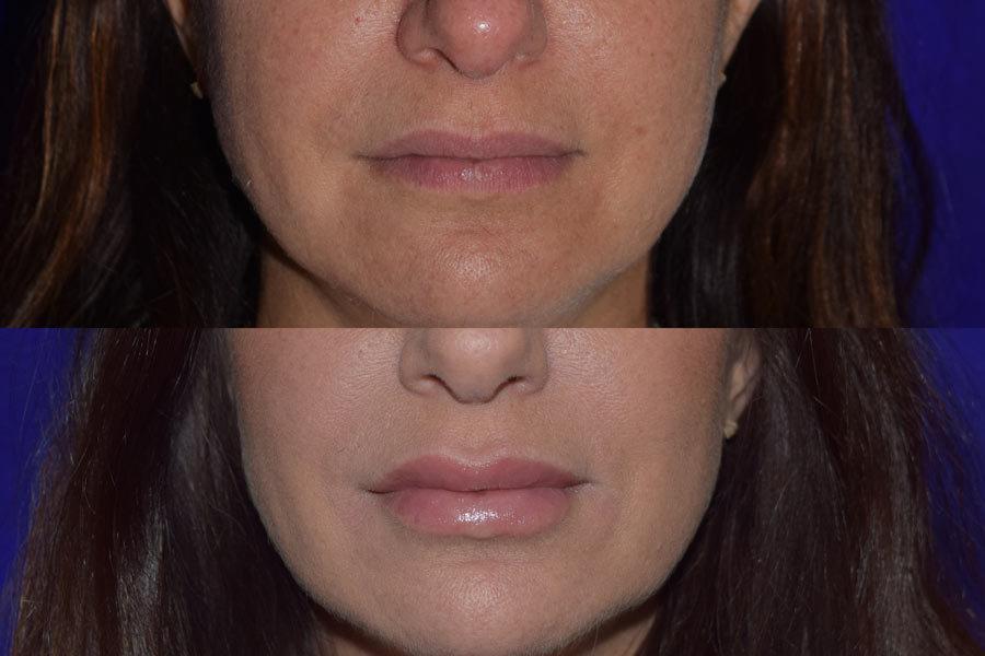 JUVDERM VOLLURE XC  Facial Fillers Santa Rosa  Artemedica