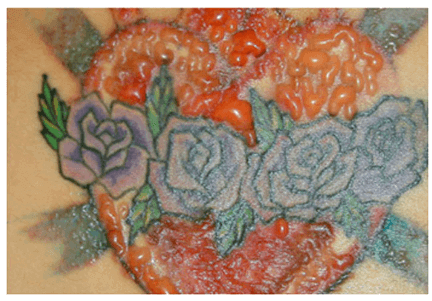 Flower tattoo - How To Remove Tattoos Naturally