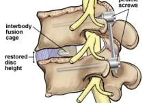 lumbar spine fusion