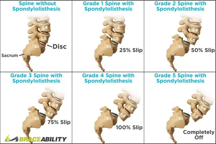What is Spondylolisthesis