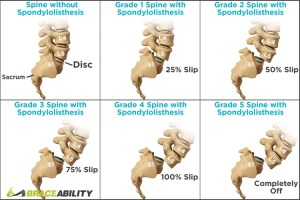 Spondylolisthesis stages