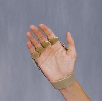 3pp Polycentric Hinged Right Hand Ulnar Deviation Splint