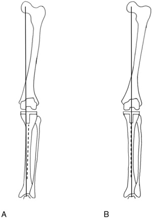 The Position of the Tibial Component Affecting the