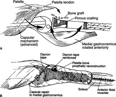 Reconstruction of the extensor mechanism after proximal