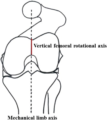 Relationship Between Mechanical Axis-Derived and Anatomic