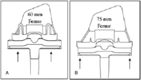 Higher Rate of Revision in PFC Sigma Primary Total Knee