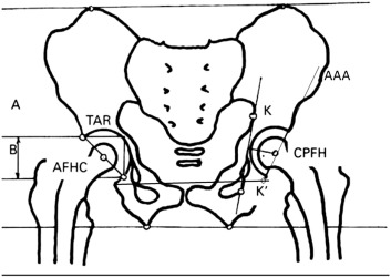 Abductor Biomechanics Clinically Impact the Total Hip