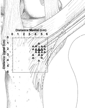 Localization of the semitendinosus-gracilis tendon