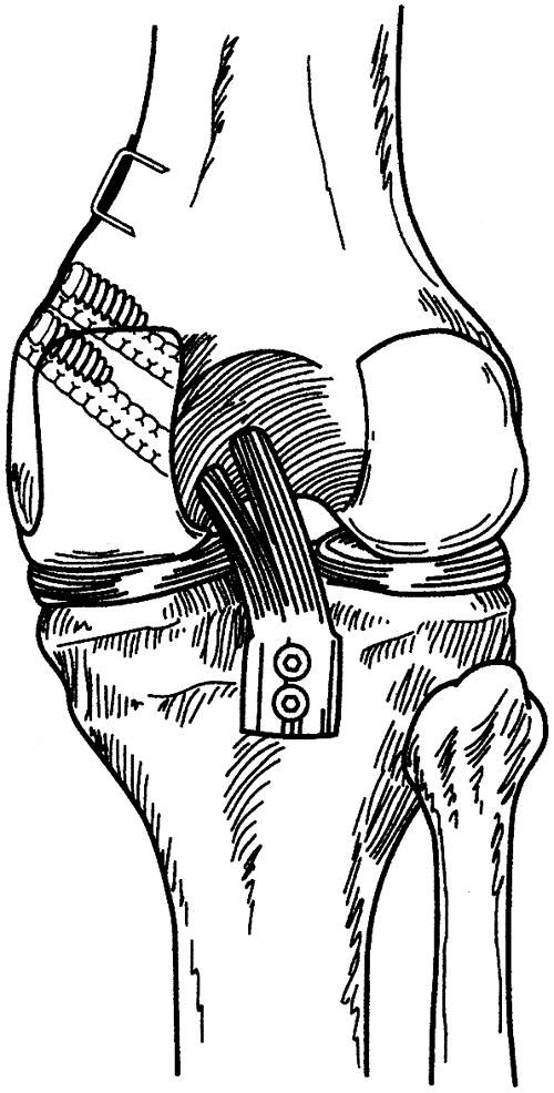 Arthroscopically assisted quadriceps double-bundle tibial
