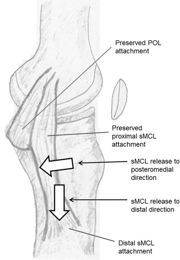 Does Release of the Superficial Medial Collateral Ligament