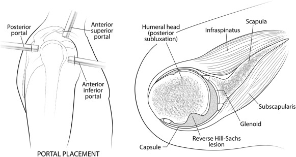 Arthroscopic Reverse Remplissage for Posterior Instability