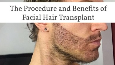 Photo of The Procedure and Benefits of Facial Hair Transplant
