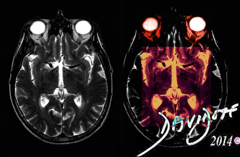 brain-art-anatomy-Davidoff