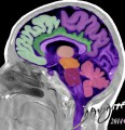 MRI-brain-art-anatomy-Davidoff
