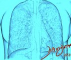 lungs-heart-art-anatomy-Davidoff