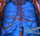 CT-lungs-chest-ribs-sternum-art-anatomy-Davidoff