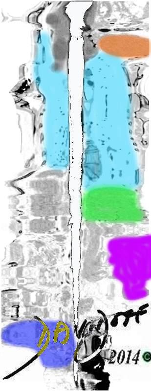 aorta-CT-scan-CTA-abstract-transport-city-art-anatomy-Davidoff