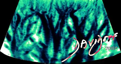 Forest-of-trees-of-renal-veins-on-color-Doppler-ultrasound