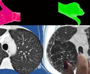 Imaging Techniques