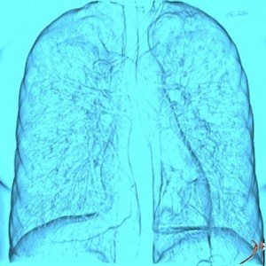 heart, lungs, chest, CT scan, X-ray