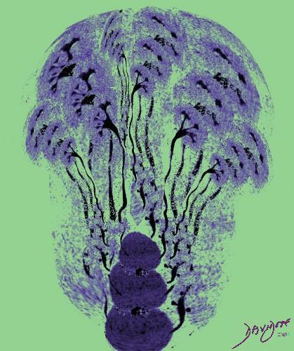 genitourinary tract, genitourinary system, kidneys, renal, kidney, bladder, anatomy, CT scan, radiology, CT urogram, Art in Anatomy, Ashley Davidoff MD, dance, trees, forest,