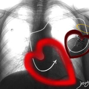 heart, pacemaker, Valentine's day, love, Cupid, arrow, stimulation, x-ray, chest X-ray, physiology, cardiac physiology