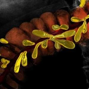 appendices epiploica, haustra, taenia coli, muscle, transverse colon, gastrointestinal tract, gastrointestinal system, colon, large bowel, art, anatomy, art in anatomy, Ashley Davidoff MD