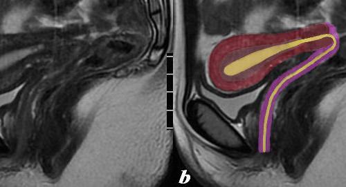 junctional zone, genitourinary tract, genitourinary system, uterus, woman, Art in Anatomy, Ashley Davidoff MD, adenomyosis, MRI